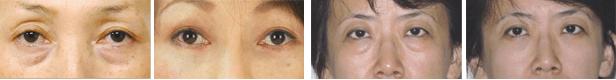 手术去眼袋案例