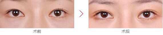 眼部修复案例