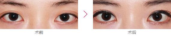 美莱眼部失败修复案例