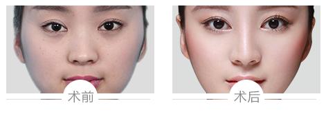 假体隆鼻案例