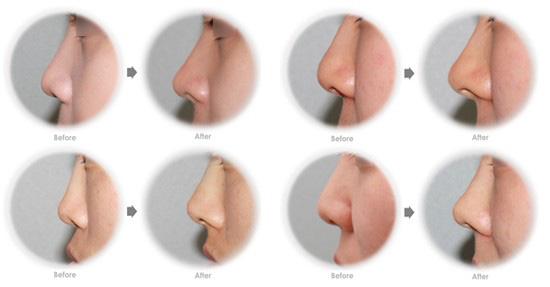 鼻翼整形案例