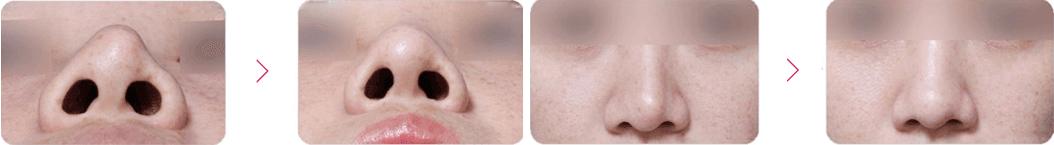 鼻型矫正案例