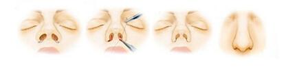 宽鼻畸形矫正