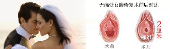 处女膜修复术案例