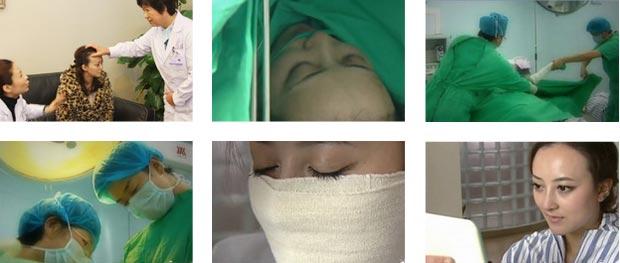 邱叶柳馨手术过程