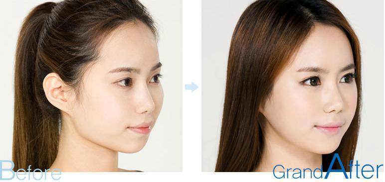 进行改脸型手术后我们应注意哪些事项