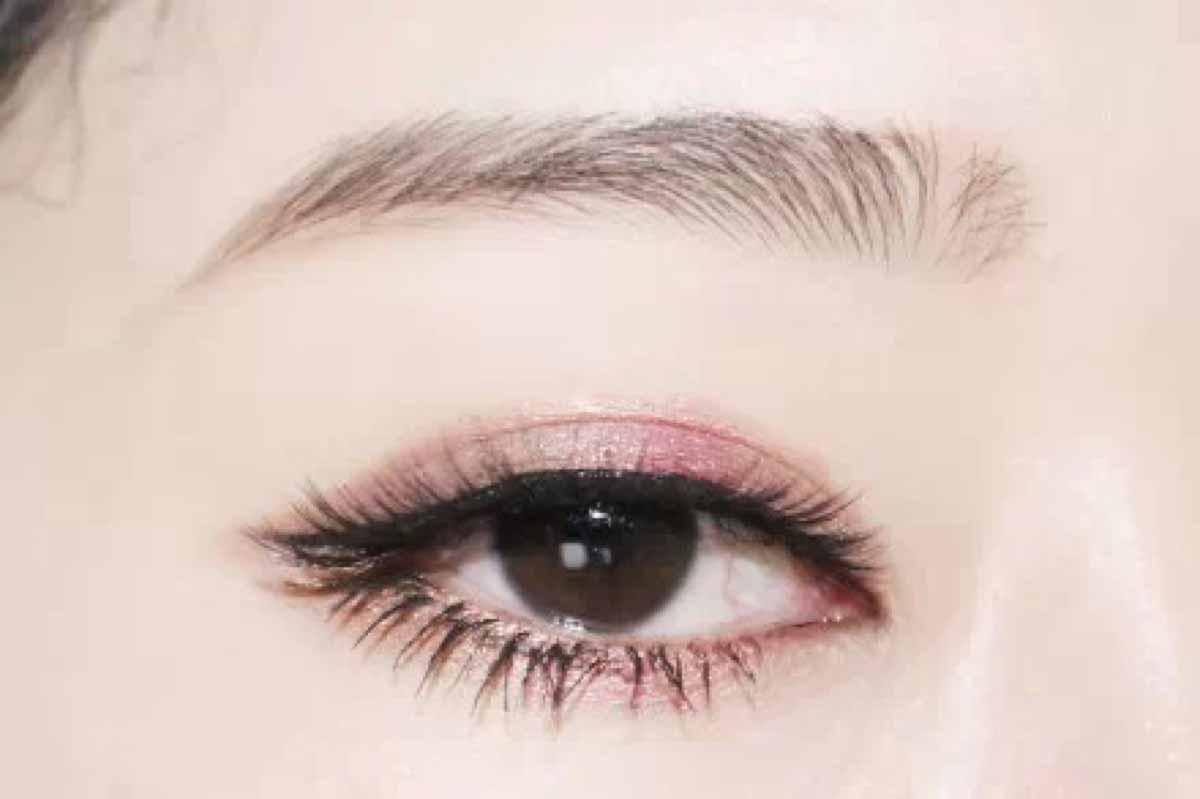 割韩式双眼皮手术明显高效好不好