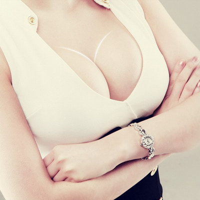 痕的假体隆胸切口方式