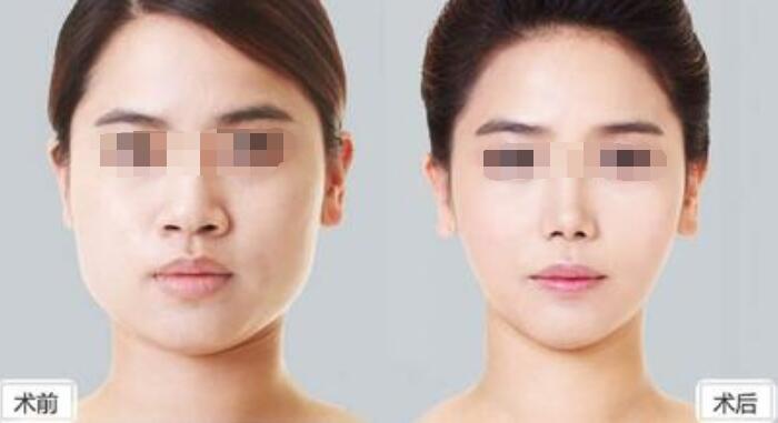 改脸型后会有副作用吗