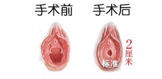 处女膜修复的价格大概是多少