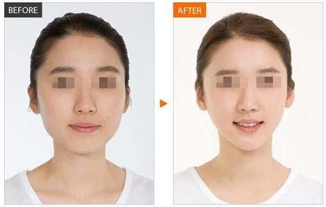 瘦脸针瘦脸针 要注射几次才有效