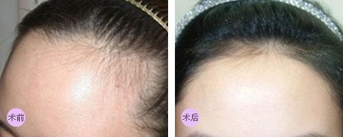 上海毛发种植能保持多久