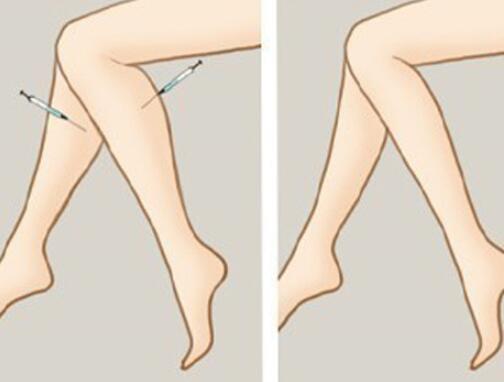 注射瘦腿让你拥有纤细美腿