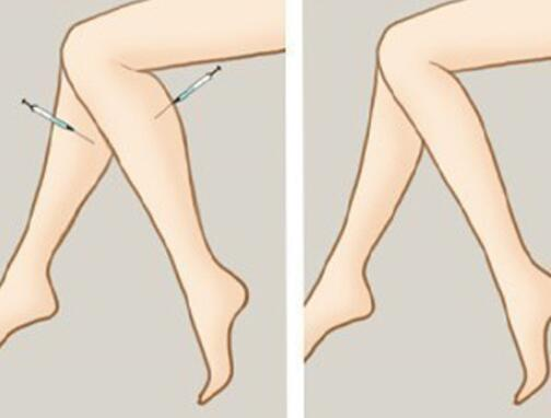 注射瘦腿针瘦腿能维持多长时间
