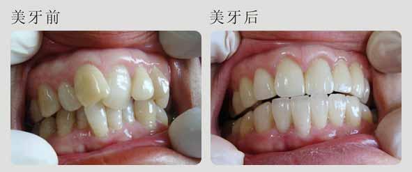 美容冠如何进行牙齿矫正