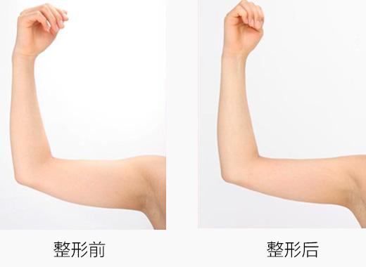 手臂吸脂的安全性如何