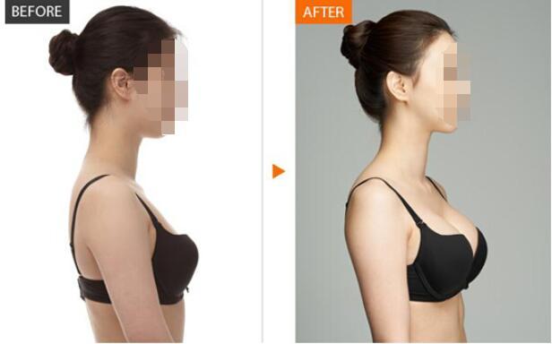 自体脂肪丰胸手术安全吗