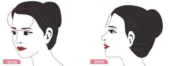 上海美莱自体脂肪丰额头要多少钱