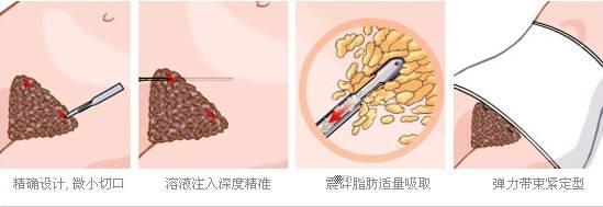 上海美莱腹部吸脂术的价格