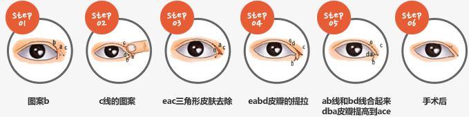 上海开眼角手术多久能恢复