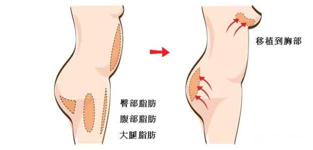 上海自体脂肪隆胸价格