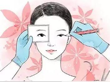 上海美莱双眼皮修复手术多少钱