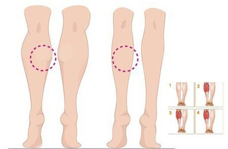 瘦脸针注射瘦小腿有效吗