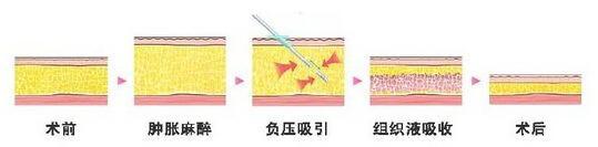 上海大腿吸脂需要多久恢复