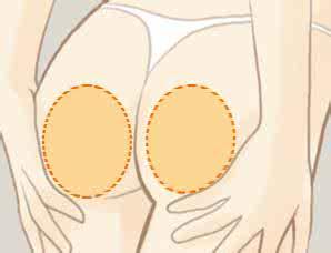 上海臀部吸脂明显高效好吗