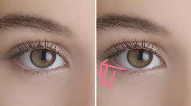眼部如何去脂