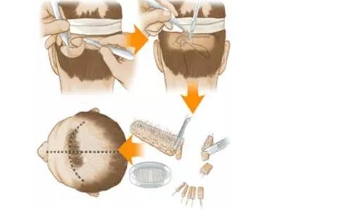 毛发移植术后护理保养