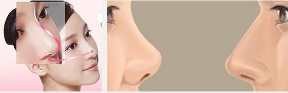 上海鼻头缩小方法
