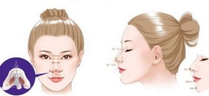 上海哪家鼻头整形术是安全的