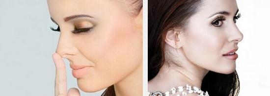 上海驼峰鼻矫正手术的价格是多少