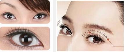 内双眼皮能做双眼皮手术吗