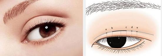 双眼皮术后多久能恢复