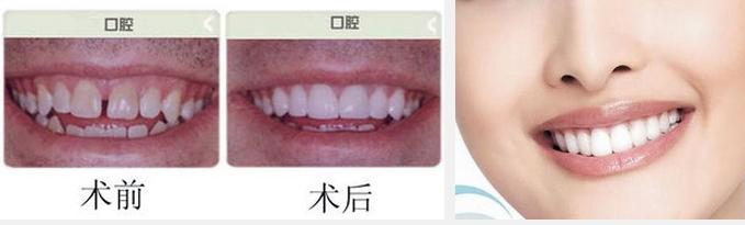 上海烤瓷牙对于修复明显高效怎么样