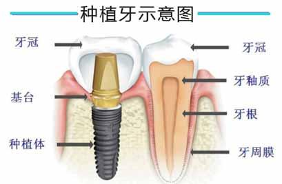 拔牙之后多久可以做种植牙
