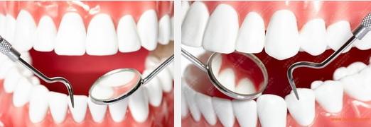哪种烤瓷牙改善牙齿的明显高效好