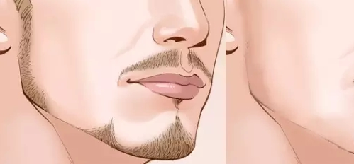 络腮胡可以用激光脱毛吗