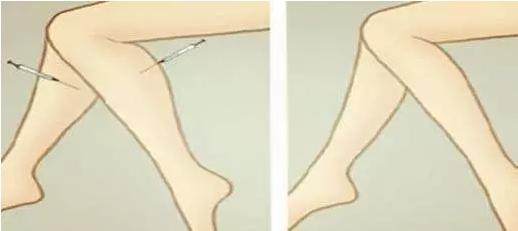 注射瘦腿针
