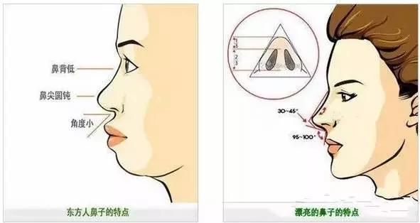 对自己的鼻型不满意怎么办