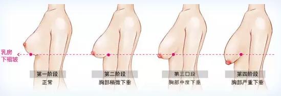 乳房下垂矫正手术过程