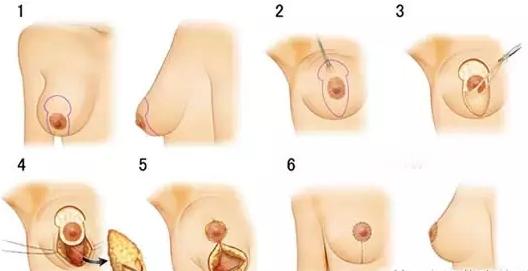 双环法乳房下垂矫正术