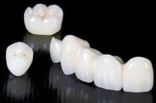 烤瓷牙和全瓷牙区别