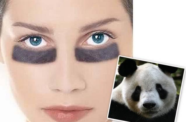 黑眼圈很重是什么原因