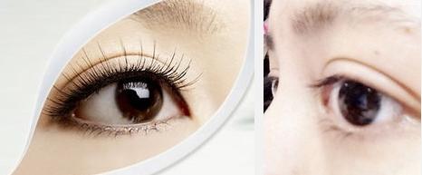 上海杜园园眼部整形多少钱