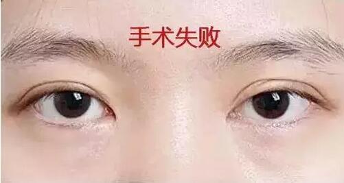 双眼皮失败图片