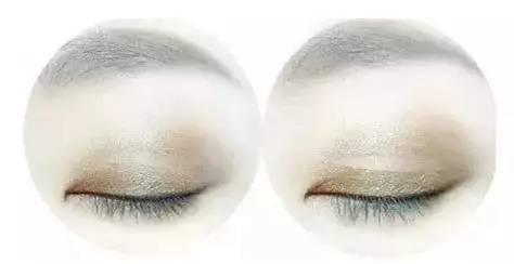 上海割双眼皮价格1般是多少