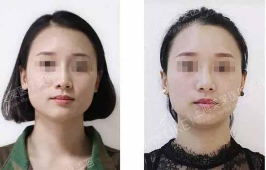 上海美莱牙齿矫正效果怎么样